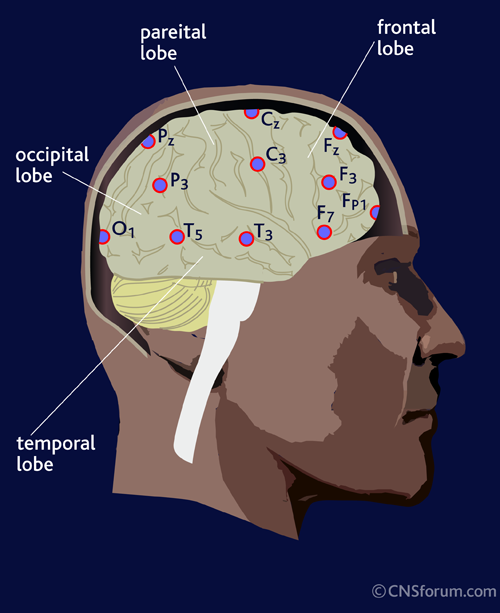 placement_EEG_leads